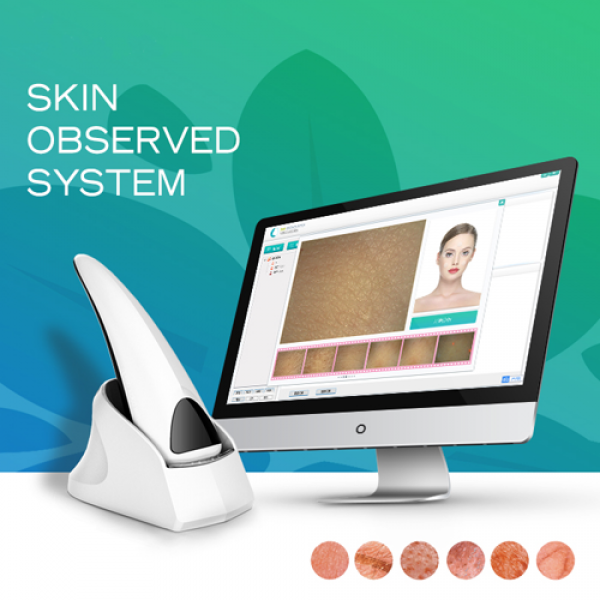 New Portable Skin Analyzer For Diagnosis Epidermis and Dermis and UV Layer